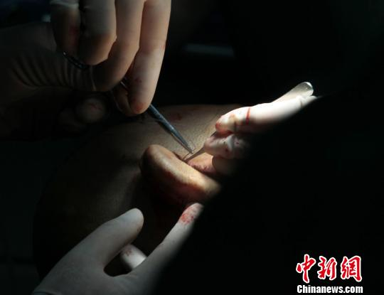 Plastic surgeons from First Affiliated Hospital of Xi'an Jiaotong University transplanting a regenerated ear from a patient's arm to his head, March 29, 2017. [Photo: Chinanews.com]